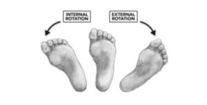 HIP INTERNAL/EXTERNAL ROTATION